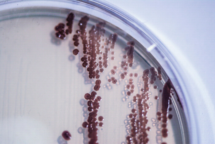 lividum – bacterial colours